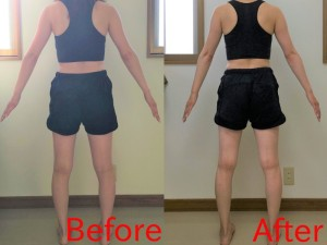Bさん 骨盤ダイエット1ヶ月
